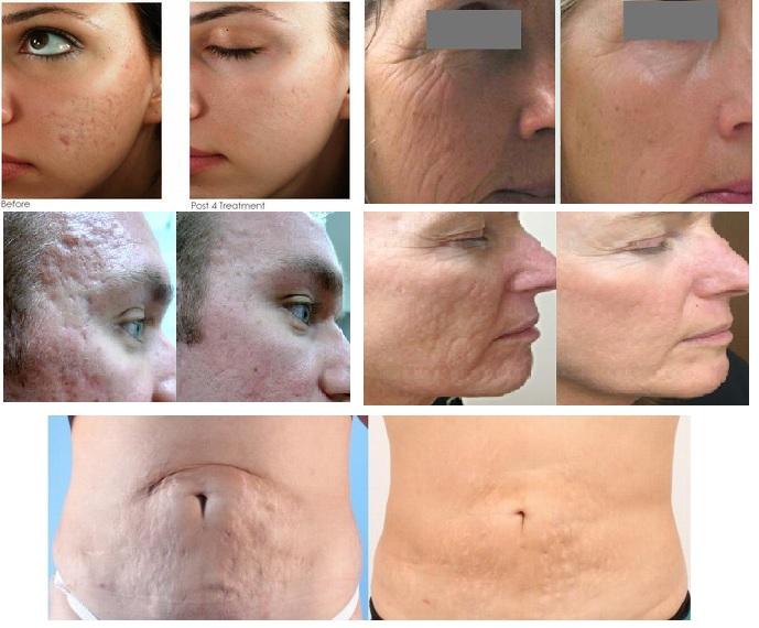 Microneedling Pen Anti Aging Facial Treatment Indiglo