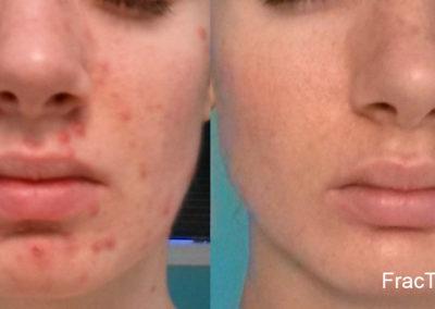 Fractora and Lumecca (Acne & Pigmenation)